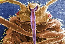 464858.bed-bug---scanning-electron-micrograph